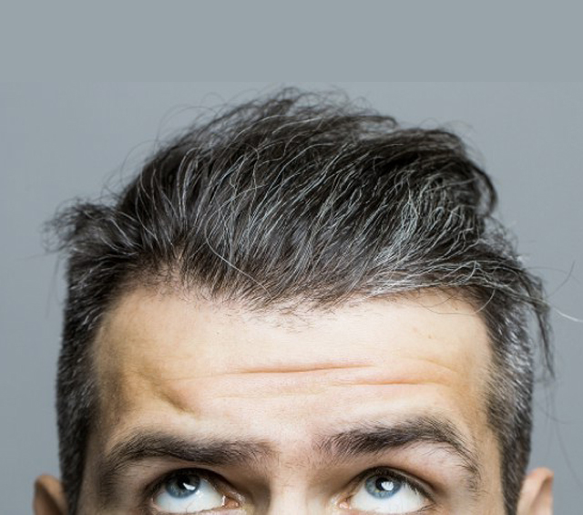 مركز لزراعة الشعر - مشروع مركز لزراعة الشعر باستثمار مليون دولار