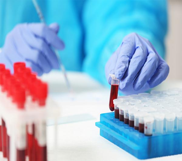 دراسة جدوى معمل تحاليل طبية باستثمار 705 ألف دولار